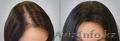 Alixir лосьон от облысения и выпадения волос