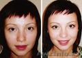 Врач-косметолог с высшим медицинским образованием-Махмудова Д. Тел: 87017831918