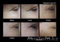 Супер акция! Патчи для глаз  из гиалуроновой кислотой с микроиглами - Изображение #3, Объявление #1608200